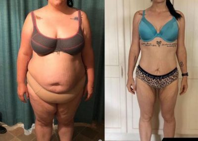 Nancy | Weight Loss Results