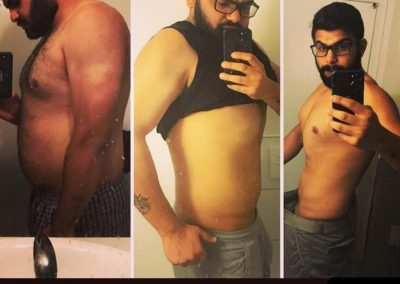 Mohamed | Weight Loss Results